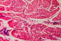 Γάτα κύστεων κυττάρων υποβάθρου φύσης στοκ εικόνα με δικαίωμα ελεύθερης χρήσης