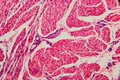 Γάτα κύστεων κυττάρων υποβάθρου φύσης στοκ φωτογραφία με δικαίωμα ελεύθερης χρήσης