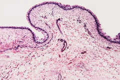 Γάτες κύστεων κυττάρων στοκ εικόνα με δικαίωμα ελεύθερης χρήσης