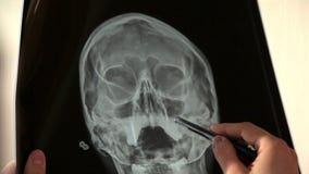 Γιατρός που αναλύει την ανθρώπινη εικόνα διαλογής κρανίων των ακτίνων X στο νοσοκομείο απόθεμα βίντεο