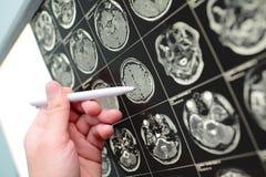 Γιατρός που δείχνει με τη μάνδρα στο αποτέλεσμα της δοκιμής MRI Στοκ Εικόνες