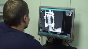 Γιατρός που εξετάζει μια ακτίνα X σε ένα νοσοκομείο φιλμ μικρού μήκους