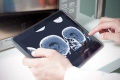 Γιατρός που εξετάζει μια ανίχνευση γατών εγκεφάλου Στοκ Εικόνες