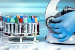 Γιατρός που εξετάζει στο δείγμα μικροσκοπίων της εξέτασης αίματος στο λ Στοκ φωτογραφία με δικαίωμα ελεύθερης χρήσης