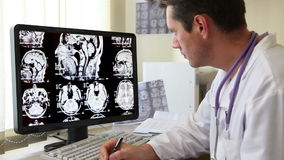 Doctor looking at CT scan Stock Footage