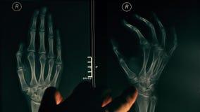 Γιατρός που εξηγεί την των ακτίνων X εικόνα ενός χεριού σε έναν ασθενή 4K βίντεο κινηματογραφήσεων σε πρώτο πλάνο φιλμ μικρού μήκους