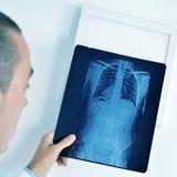 Γιατρός που παρατηρεί μια ακτηνογραφία σκελετών Στοκ Εικόνα