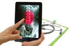 Γιατρός που φαίνεται των ακτίνων X εικόνα οσφυικών σπονδυλικών στηλών στην ταμπλέτα στοκ εικόνες