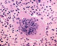 Γιγαντιαίο κύτταρο Mutinucleated στοκ εικόνες