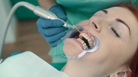 Γυαλίζοντας σμάλτο με την ασβέστιο-βασισμένη στο κόλλα μετά από τον υπερηχητικό καθαρισμό των δοντιών φιλμ μικρού μήκους