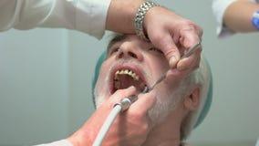 Γυαλίζοντας δόντια οδοντιάτρων απόθεμα βίντεο