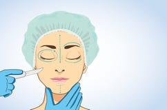 Γυναίκα έτοιμη στη αισθητική χειρουργική διανυσματική απεικόνιση
