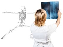 Γυναίκα ακτινολόγων που ελέγχει την ακτίνα X κοντά στον ασθενή στοκ εικόνες με δικαίωμα ελεύθερης χρήσης
