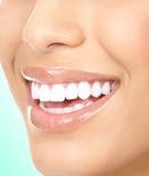 γυναίκα δοντιών Στοκ φωτογραφία με δικαίωμα ελεύθερης χρήσης