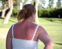 γυναίκα ηλιακού εγκαύμα& Στοκ Εικόνα