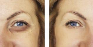 Γυναίκα, μάτι που πρήζεται πριν και μετά από τις διαδικασίες, treatm στοκ εικόνες με δικαίωμα ελεύθερης χρήσης