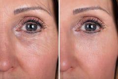 Γυναίκα με πριν και μετά από την αναζωογόνηση στοκ εικόνες