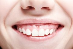 Γυναίκα με τα ρόδινα χείλια και τα υγιή dentes χαμόγελο κοριτσιών στοκ φωτογραφία