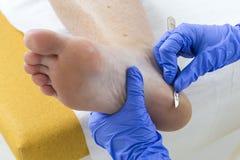 Γυναίκα που λαμβάνει τα πόδια της podiatry επεξεργασίας podiatrist γυναίκας πεντικιουριστών καθαρίζοντας στοκ φωτογραφία με δικαίωμα ελεύθερης χρήσης