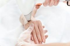 Γυναίκα που λαμβάνει τη φροντίδα δέρματος λέιζερ σε διαθεσιμότητα Στοκ Εικόνα