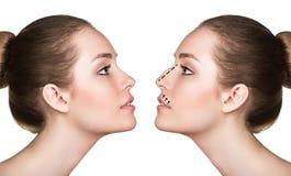 Γυναίκα πριν και μετά από την καλλυντική χειρουργική επέμβαση μύτης στοκ φωτογραφία με δικαίωμα ελεύθερης χρήσης