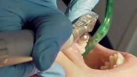 Γυναίκα στην οδοντική ιατρική κλινική υγιεινολόγων φιλμ μικρού μήκους