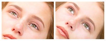 Γυναίκα στη διαδικασία για τις επεκτάσεις eyelash, στοκ εικόνες με δικαίωμα ελεύθερης χρήσης