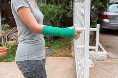 Γυναίκα τραυματισμών που φορά τα αθλητικά εμπορεύματα με πράσινο χυτά σε διαθεσιμότητα και το βραχίονα στοκ εικόνα