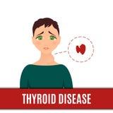 Γυναίκες με τον κανονικό και αδένα hyperthyroid ελεύθερη απεικόνιση δικαιώματος