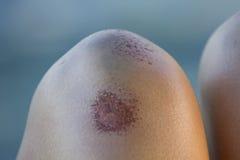 γόνατο Στοκ εικόνες με δικαίωμα ελεύθερης χρήσης
