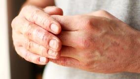 Δάχτυλα ενός ατόμου με την ψωρίαση και το έκζεμα Μια κινηματογράφηση σε πρώτο πλάνο της αποφλοίωσης δερμάτων απόθεμα βίντεο