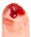 δάχτυλο αποκοπών Στοκ φωτογραφίες με δικαίωμα ελεύθερης χρήσης