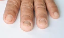 Δάχτυλο, και μύκητας στο καρφί στοκ φωτογραφίες
