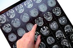 Δάχτυλο που δείχνει στην επηρεασθείσα περιοχή στο υπομονετικό κεφάλι ` s στο θόριο Στοκ Φωτογραφία