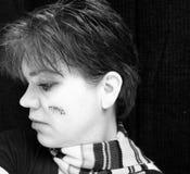 δέρμα καρκίνου Στοκ φωτογραφία με δικαίωμα ελεύθερης χρήσης