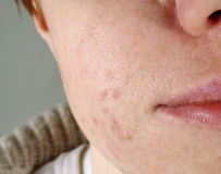 Δέρμα με τα προβλήματα ακμής στοκ εικόνα