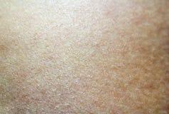 Δέρμα του προσώπου Στοκ Εικόνα