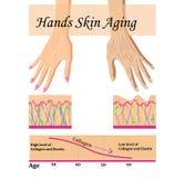 Δέρμα χεριών που γερνά, διανυσματική απεικόνιση με ένα διάγραμμα διανυσματική απεικόνιση