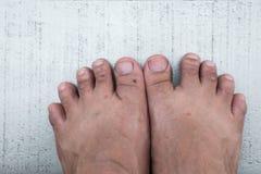 Δαγκώματα εντόμων στα πόδια, αλλεργικός, γρατσούνισμα συμπτωμάτων itchy στοκ εικόνες