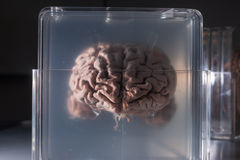 Δείγματα εγκεφάλου που συντηρούνται στις πλαστικές φωτογραφικές διαφάνειες Στοκ Εικόνες