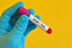 Δείγμα αίματος για τη δοκιμή DCIP στοκ εικόνα με δικαίωμα ελεύθερης χρήσης