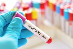 Δείγμα αίματος για τη δοκιμή HLA-B*5701 Στοκ Εικόνες