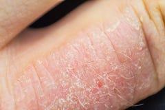 Δερματίτιδα χεριών Έκζεμα χεριών Στοκ φωτογραφίες με δικαίωμα ελεύθερης χρήσης