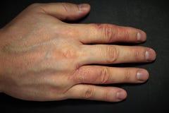 Δερματίτιδα χεριών Έκζεμα χεριών Στοκ εικόνες με δικαίωμα ελεύθερης χρήσης