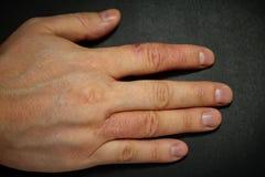 Δερματίτιδα χεριών Έκζεμα χεριών Στοκ φωτογραφία με δικαίωμα ελεύθερης χρήσης
