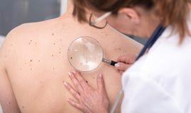 Δερματολόγος που εξετάζει το δέρμα ενός ασθενή Στοκ εικόνα με δικαίωμα ελεύθερης χρήσης