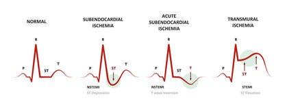 Διάγνωση της μυοκαρδιακής ισχαιμίας διανυσματική απεικόνιση