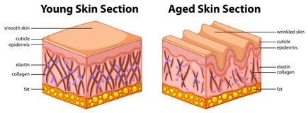 Διάγραμμα που παρουσιάζει νέο και ηλικίας δέρμα απεικόνιση αποθεμάτων