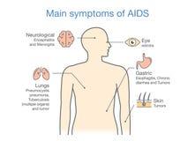 Διάγραμμα των κύριων συμπτωμάτων του AIDS Στοκ Φωτογραφία