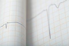 Διάγραμμα Bended ECG, ιατρικό υπόβαθρο Στοκ Φωτογραφία